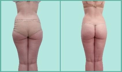 saddlebags liposuction