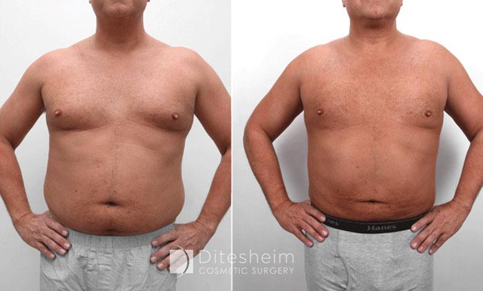 aquashape liposuction for men