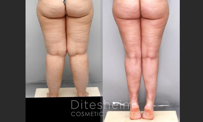 lower body liposuction for women