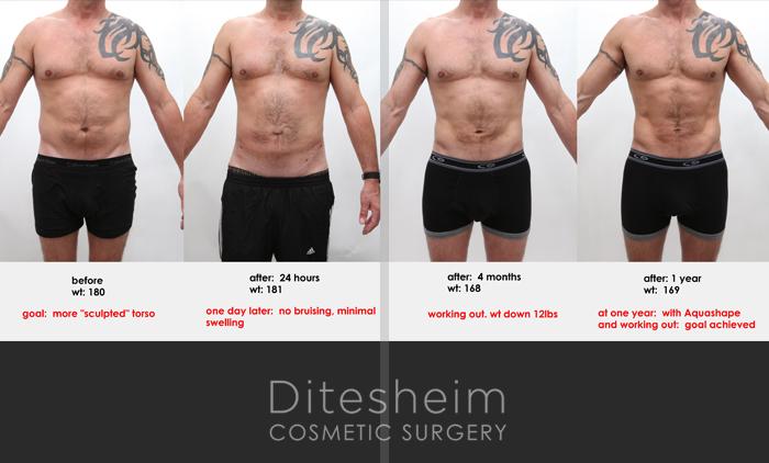 liposuction composite
