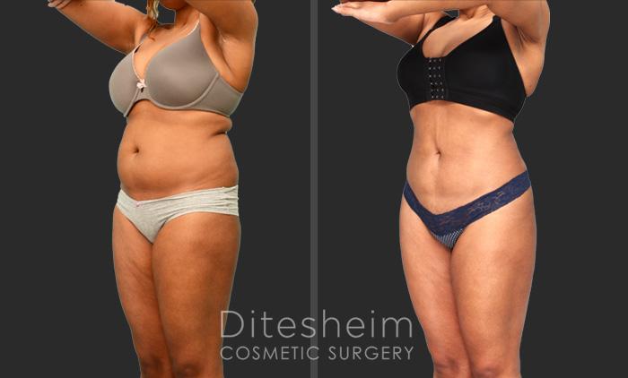 Female liposuction charlotte