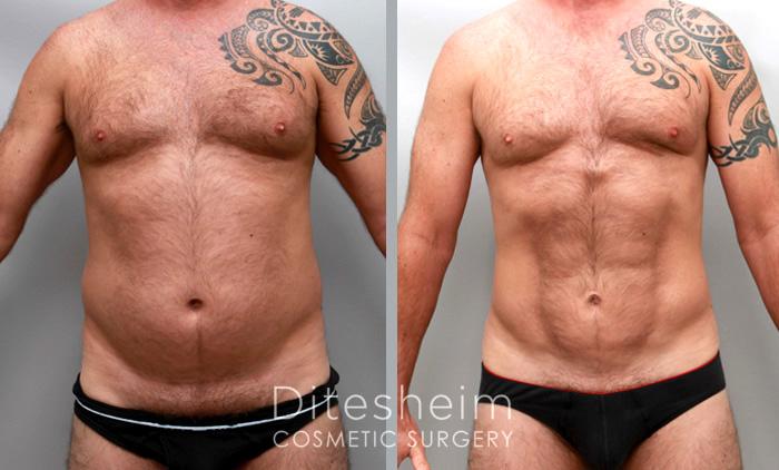 male liposuction for abdomen charlotte